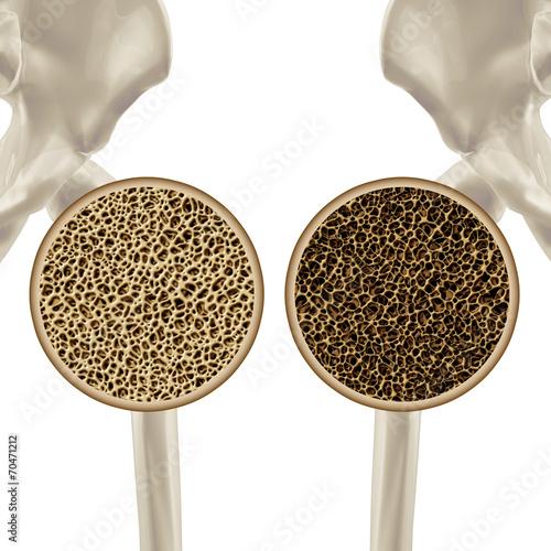 Fotografía  Osteoporosis