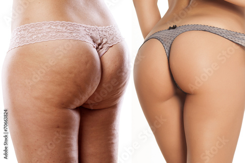 Fotografía  body care - female buttocks with and without cellulite