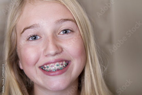 Fotografie, Obraz  teen girl with braces on her teeth