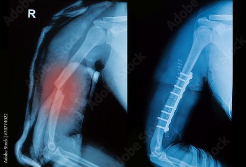 x-ray image of borken arm bone show pre- post operation Canvas Print