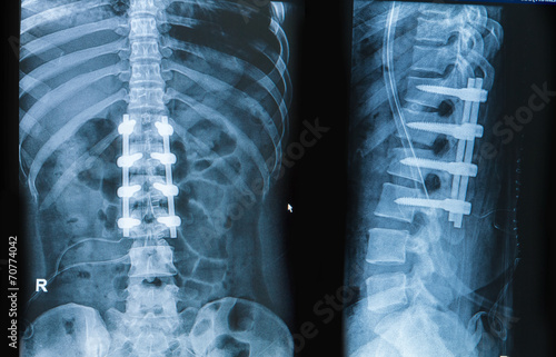 Fotografie, Obraz  x-ray image of back pain show spinal column with implant fusion