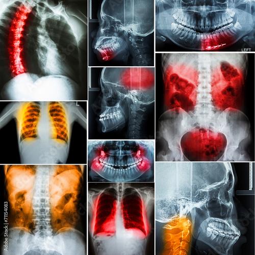 kolaz-zdjec-rentgenowskich-czlowieka