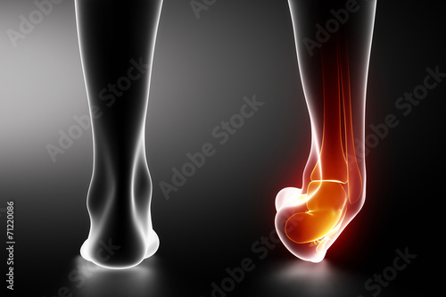 Sprained ankle black x-ray Canvas Print