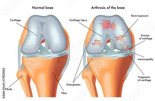 Photo artrosi del ginocchio