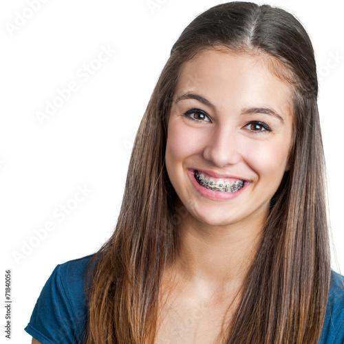 Fotografia  Smiling Teen girl showing dental braces.