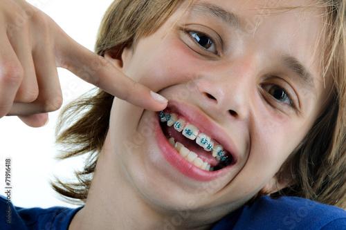 Fotografia  Orthodontie - Enfant montrant ses bagues