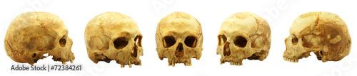 Photo Genuine human skull isolated on white, lipids makes skull yellow