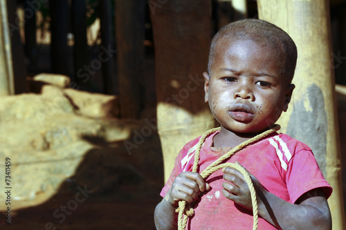 Fotografija  Poor african boy with a string -  trying to attempt a suicide