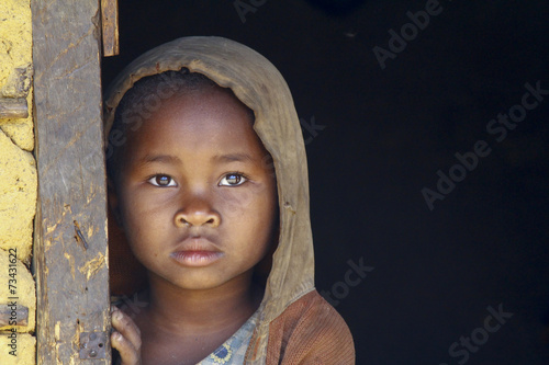 Photo  Madagascar-shy and poor african girl with headkerchief