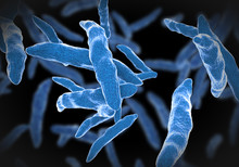 Bacterial Infection Tuberculosis
