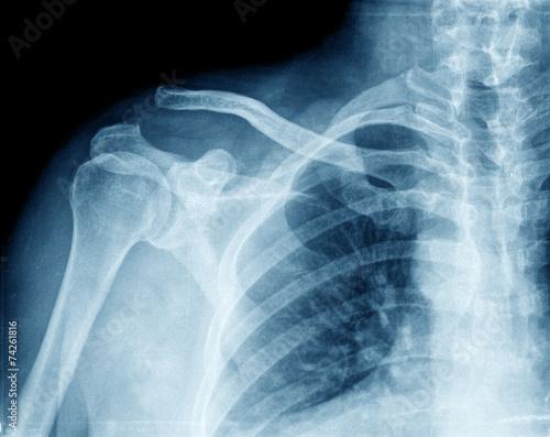 Fotografie, Obraz  x-ray chest