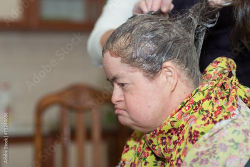 Fotografía trisomique femme mourir les cheveux