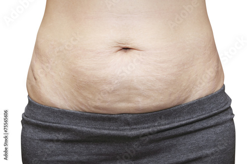 Fotografia, Obraz  stretch marks on Asian woman belly