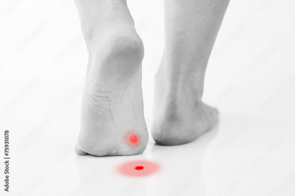 Fototapeta Callus or plantar wart under foot