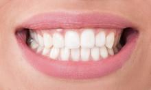 Closeup With Perfect Female Teeth