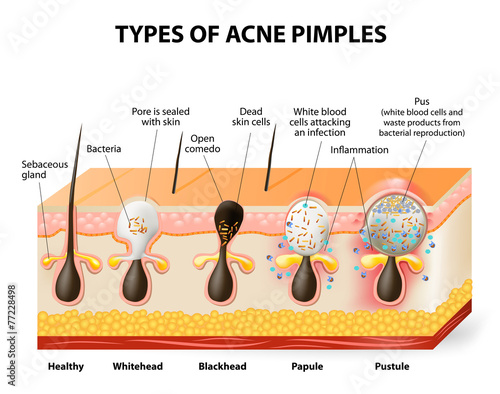 Types of acne pimples Canvas Print