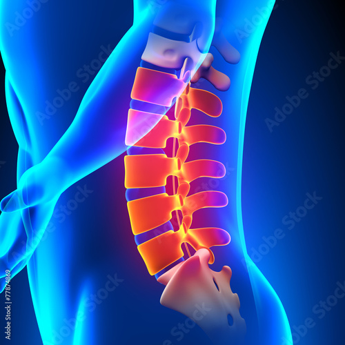 Fotomural  Lumbar Spine Anatomy Pain concept