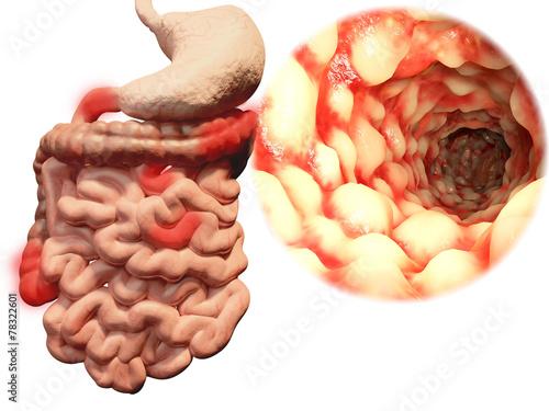 Fényképezés  Morbus Crohn im Gastrointestinaltrakt