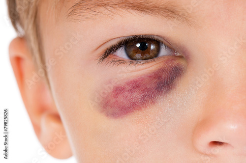 Fotografie, Obraz  Boy with bruise