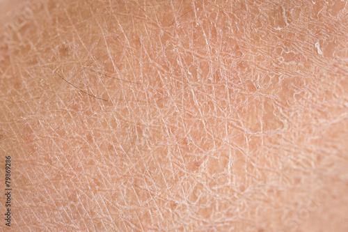 Fotografia, Obraz dry skin (ichthyosis) detail