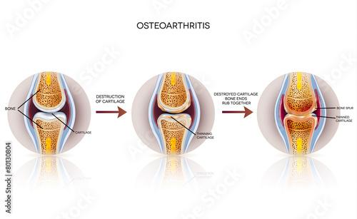 Obraz Osteoarthritis detailed illustration. From healthy joint to dama - fototapety do salonu