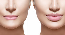 Before And After Lip Filler In...