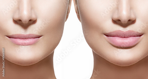 Fotografiet Before and after lip filler injections. Lips closeup over white