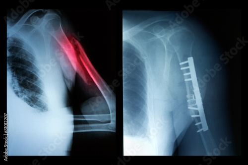 Broken bone before and after surgical intervention