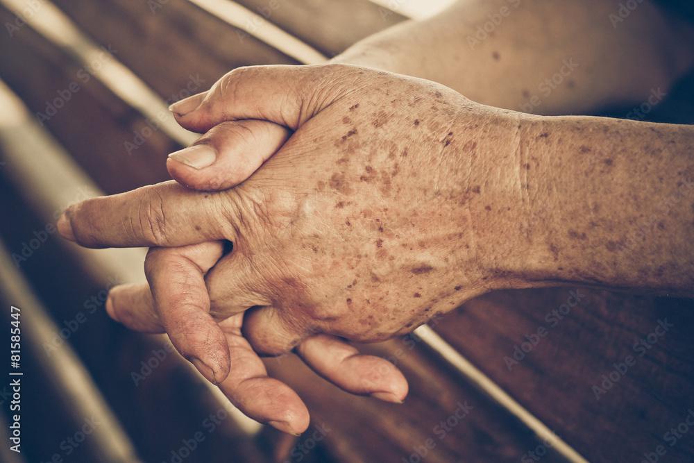 Fototapeta hands of a female elderly full of freckles
