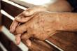Leinwanddruck Bild - hands of a female elderly full of freckles