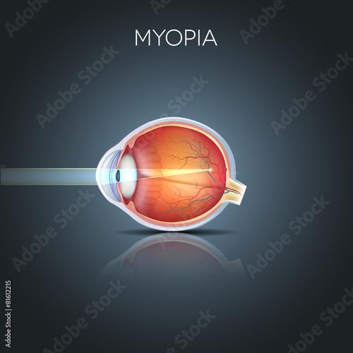 Fotografía  Myopia. Myopia is being short sighted (near sighted). Far away o
