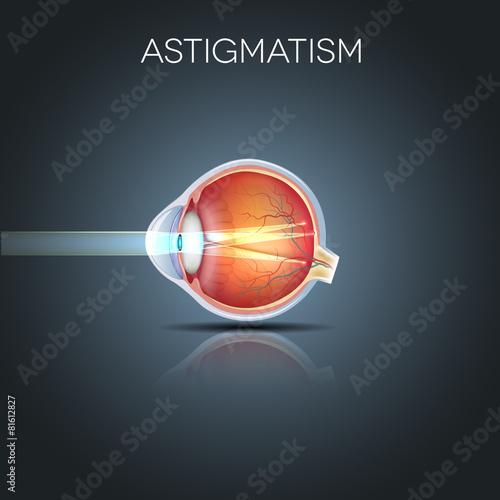 Photo Astigmatism. Eyesight problem, blurred vission.