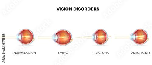 Photo Eyesight disorders. Normal eye, Astigmatism, hyperopia and myopi