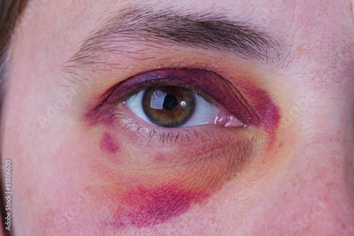 Fotografie, Obraz  Human eye with a large bruise