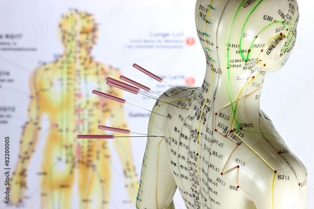 Fototapety, obrazy: weibliches Akupunkturmodell mit Nadeln im Schulterbereich vor Lehrtafel