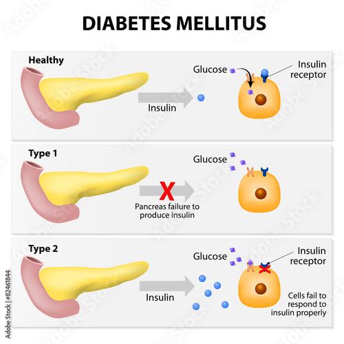 Fotografía  Diabetes mellitus