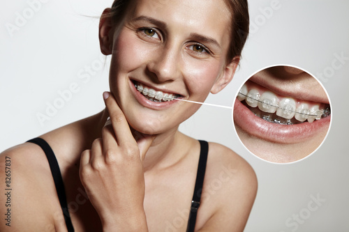 фотография  prety girl is smiling with braces and lens showing them bigger