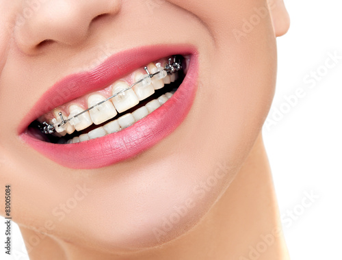 Fotografia  Closeup Braces on Teeth. Woman Smile with Orthodontic Braces.