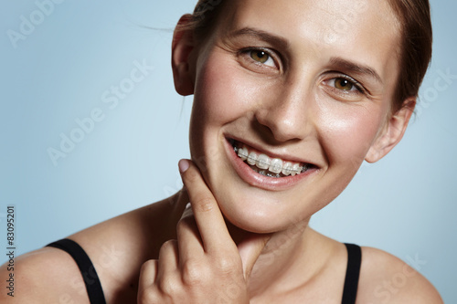 happy girl is smiling with a braces Fototapet