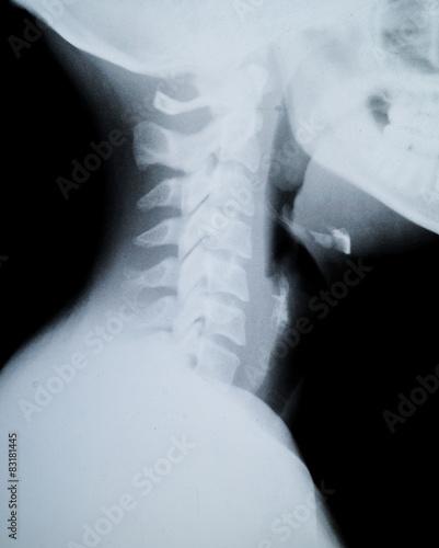 X ray neck and Jaw – kaufen Sie dieses Foto und finden Sie ähnliche ...