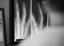 Digital X-ray Of A Patient Hand