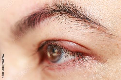 Left upper eye lid abscess stye or hordeolum Wallpaper Mural