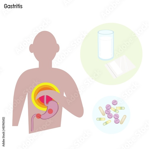 gastritis erosive diät alkohol.jpg