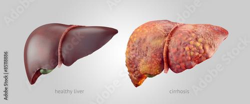 Obraz Realistic illustration of healthy and sick human livers - fototapety do salonu
