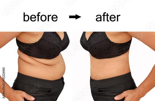 Fotografía  after a diet
