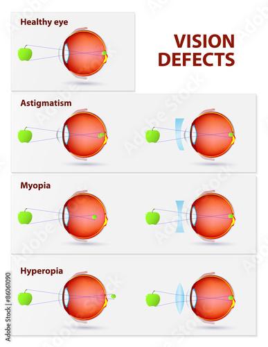 Fotografía  Astigmatism, Myopia and Hyperopia