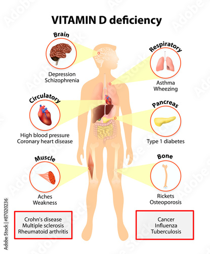 Fotografie, Obraz  Vitamin D deficiency. symptoms and diseases
