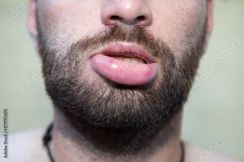 Photo Swollen lip