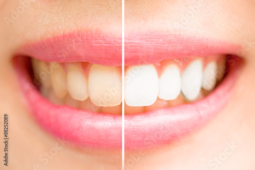Αφίσα  Close-up teeth female between before and after brush the teeth.