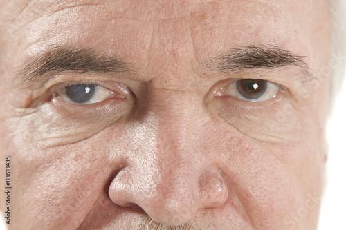 Fotografía  Enfermedad ocular